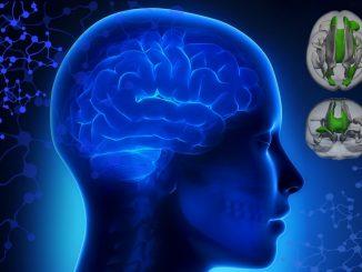 Die Gehirne von ADHS-Patienten sind strukturell vielfältig